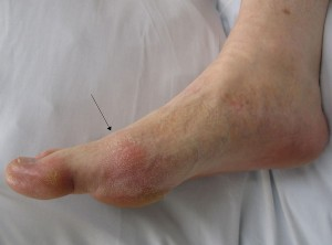 home remedy gout - common gouty arthritis