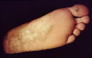 Natural Remedy For Ringworm: Ringworm on foot (Tinea pedis)