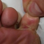 Natural Remedies for Athletes Foot