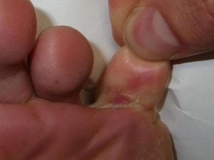 Summer skin diseases: Athletes foot