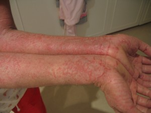 Eczema Natural Remedies: Eczema on arms