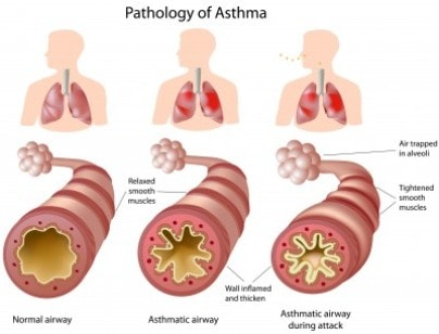 Asthma Natural Remedies: asthma pathology