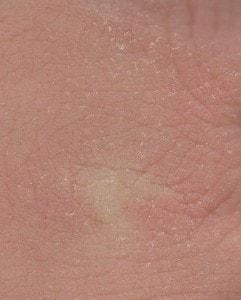 Summer skin diseases: Dry skin