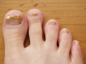 Home Remedies for Fingernail Fungus: image of nail with fungal infection
