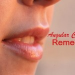 Effective Home Remedies for Angular Cheilitis