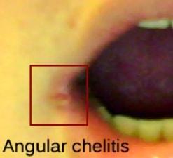 angular chelitis