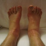 The Question Remains: How to Reduce Edema