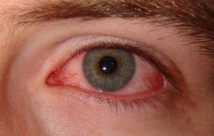 sore eyes or pink eye is also known as conjunctivitis