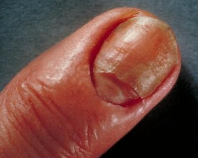 Skin yeast infection remedies: candidiasis of a fingernail