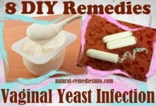 DIY vaginal yeast remedies