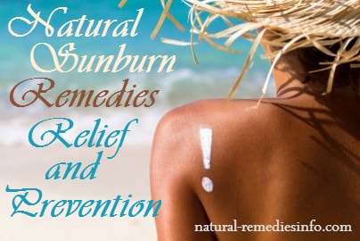 Sunburn remedies, relief and prevention