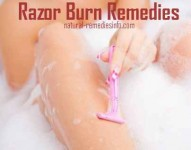 Razor burn remedies