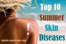 Summer skin diseases