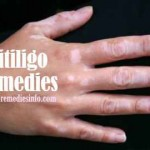 Natural Cures for Vitiligo