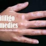Natural Cures for Vitiligo