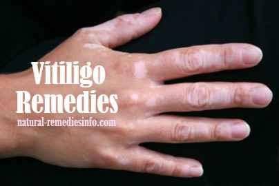 Vitiligo remedies | natural-remediesinfo.com