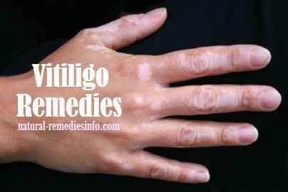 Vitiligo remedies | natural-remediesinfo.com